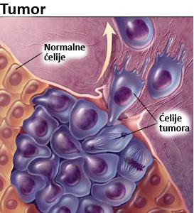 Tumor, rak, kancer, karcinom