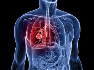 Protiv tumora pluća preporučujemo Primed 13 kordiceps