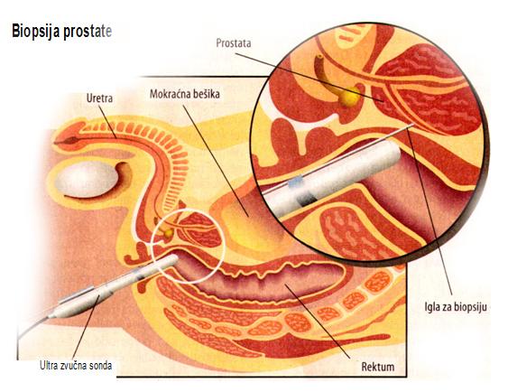 tumor, prostate