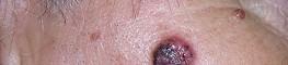 Slika 5. Bazocelularni karcionom na licu
