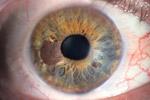 Melanom oka