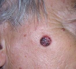Bazocelularni karcionom na licu